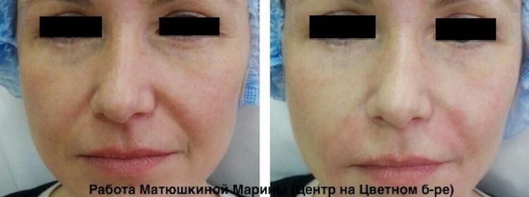 Заполнение морщин вокруг глаз ивор гидро