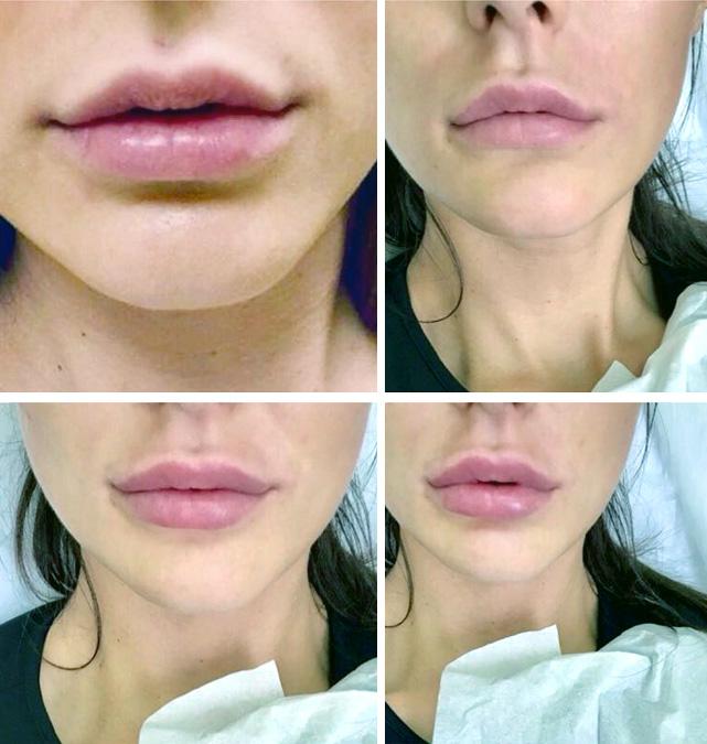 Увеличение губ гиалуроновой кислотой в туле